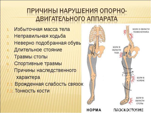 Причины нарушения опорно-двигательного аппарата Избыточная масса телаНеправильная ходьбаНеверно подобранная обувьДлительное стояниеТравмы стопыСпортивные травмыПричины наследственного характера7.1. Врожденная слабость связок7.2. Тонкость кости