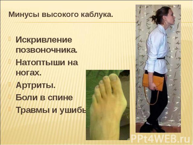 Минусы высокого каблука. Искривление позвоночника.Натоптыши на ногах.Артриты.Боли в спинеТравмы и ушибы.