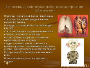 Вот некоторые заболевания наиболее характерные для табакокуренияВ бронхах – хрон