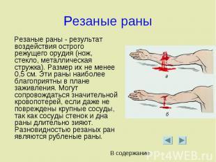 Резаные раны Резаные раны - результат воздействия острого режущего орудия (нож,