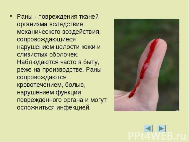 Раны - повреждения тканей организма вследствие механического воздействия, сопровождающиеся нарушением целости кожи и слизистых оболочек. Наблюдаются часто в быту, реже на производстве. Раны сопровождаются кровотечением, болью, нарушением функции пов…