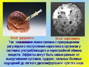Так называемая ломка связана с прекращением регулярного поступления наркотика в