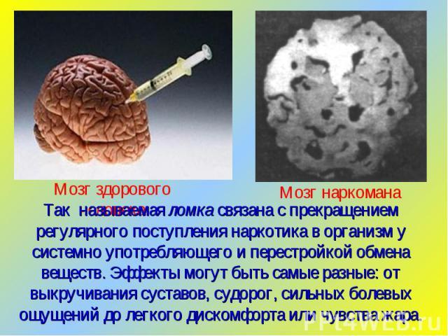 Так называемая ломка связана с прекращением регулярного поступления наркотика в организм у системно употребляющего и перестройкой обмена веществ. Эффекты могут быть самые разные: от выкручивания суставов, судорог, сильных болевых ощущений до легкого…