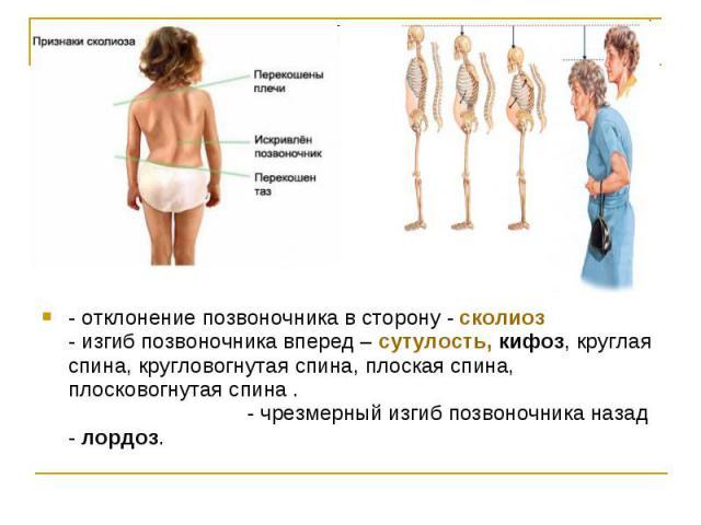 - отклонение позвоночника в сторону - сколиоз - изгиб позвоночника вперед – сутулость, кифоз, круглая спина, кругловогнутая спина, плоская спина, плосковогнутая спина . - чрезмерный изгиб позвоночника назад - лордоз.