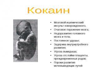 Вызывают Малый вес ребенка Преждевременные роды; Недоразвитие черепаМозговой ише