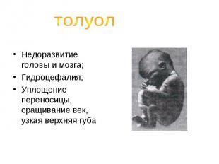 толуолНедоразвитие головы и мозга;Гидроцефалия;Уплощение переносицы, сращивание