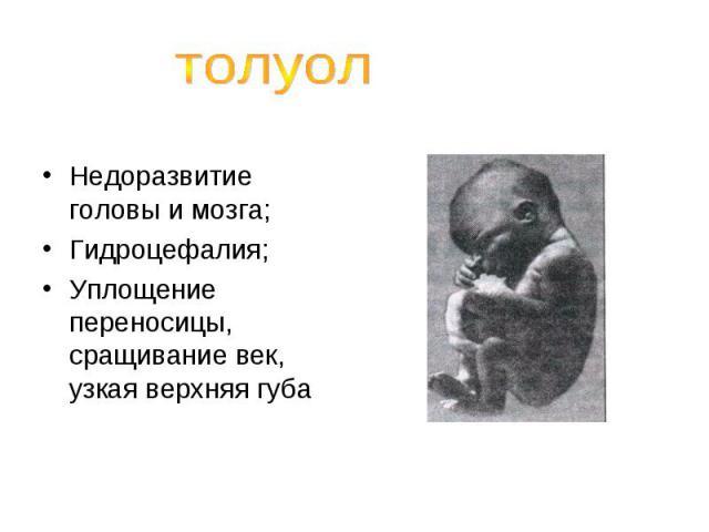 толуолНедоразвитие головы и мозга;Гидроцефалия;Уплощение переносицы, сращивание век, узкая верхняя губа