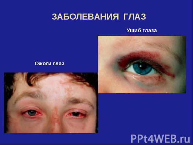 ЗАБОЛЕВАНИЯ ГЛАЗОжоги глазУшиб глаза