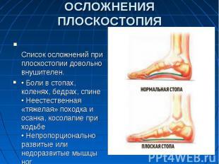 ОСЛОЖНЕНИЯ ПЛОСКОСТОПИЯСписок осложнений при плоскостопии довольно внушителен.•