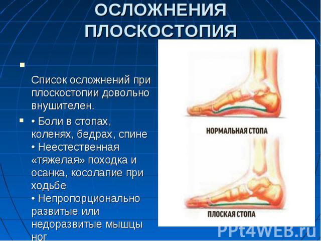 ОСЛОЖНЕНИЯ ПЛОСКОСТОПИЯСписок осложнений при плоскостопии довольно внушителен.•Боли в стопах, коленях, бедрах, спине•Неестественная «тяжелая» походка и осанка, косолапие при ходьбе•Непропорционально развитые или недоразвитые мышцы ног