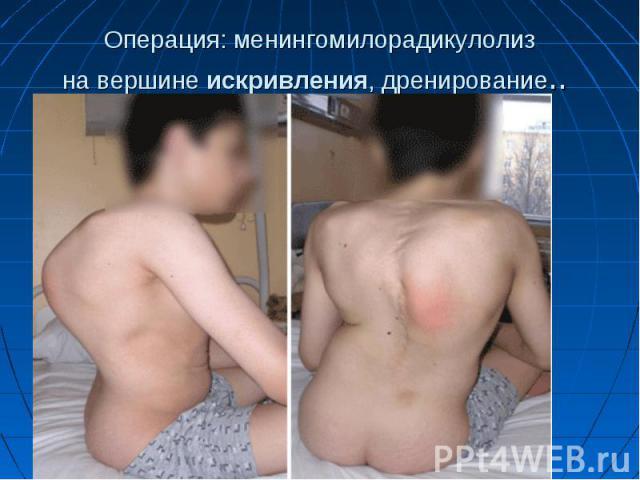 Операция: менингомилорадикулолиз навершинеискривления, дренирование..