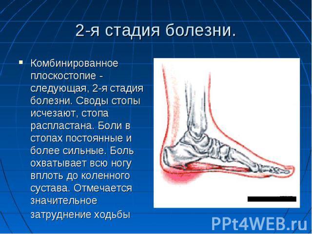 2-я стадия болезни.Комбинированное плоскостопие - следующая, 2-я стадия болезни. Своды стопы исчезают, стопа распластана. Боли в стопах постоянные и более сильные. Боль охватывает всю ногу вплоть до коленного сустава. Отмечается значительное затрудн…