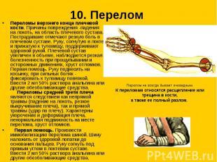 10. Перелом Переломы верхнего конца плечевой кости. Причины повреждения -падения