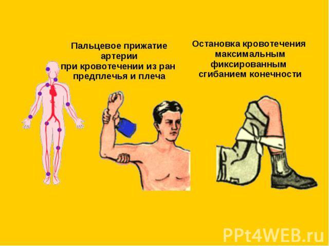 Пальцевое прижатие артериипри кровотечении из ран предплечья и плеча Остановка кровотечения максимальным фиксированным сгибанием конечности