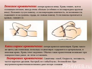 Венозное кровотечение: потеря крови из вены. Кровь темнее, льется сплошным поток