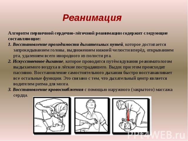 РеанимацияАлгоритм первичной сердечно-лёгочной реанимации содержит следующие составляющие:1. Восстановление проходимости дыхательных путей, которое достигается запрокидыванием головы, выдвижением нижней челюсти вперёд, открыванием рта, удалением все…