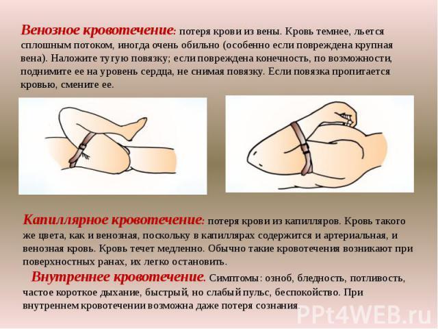 Венозное кровотечение: потеря крови из вены. Кровь темнее, льется сплошным потоком, иногда очень обильно (особенно если повреждена крупная вена). Наложите тугую повязку; если повреждена конечность, по возможности, поднимите ее на уровень сердца, не …