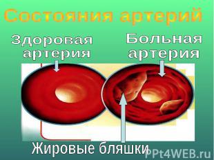 Состояния артерийЗдоровая артерияБольная артерияЖировые бляшки