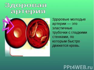 Здоровая артерияЗдоровые молодые артерии — это эластичные трубочки с гладкими ст