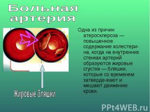 Больная артерияОдна из причин атеросклероза — повышенное содержание холестерина,