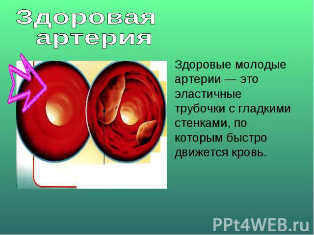 Здоровая артерияЗдоровые молодые артерии — это эластичные трубочки с гладкими стенками, по которым быстро движется кровь.
