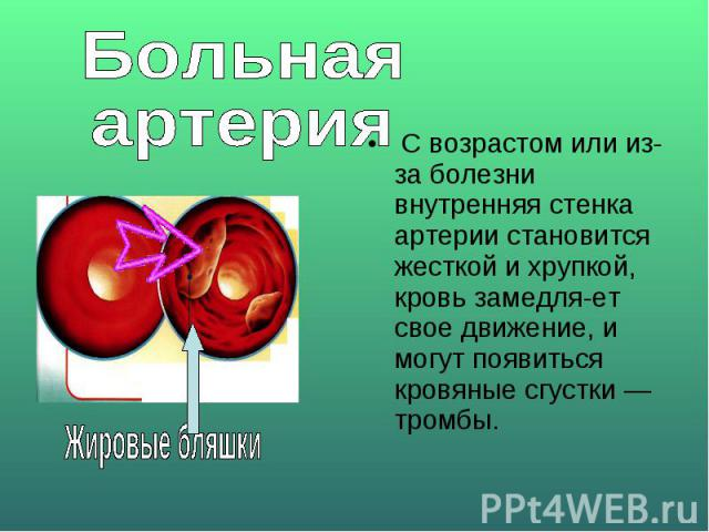 Больная артерия С возрастом или из-за болезни внутренняя стенка артерии становится жесткой и хрупкой, кровь замедляет свое движение, и могут появиться кровяные сгустки — тромбы.