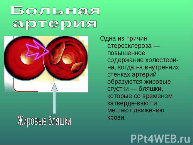 Больная артерияОдна из причин атеросклероза — повышенное содержание холестерина, когда на внутренних стенках артерий образуются жировые сгустки — бляшки, которые со временем затвердевают и мешают движению крови.