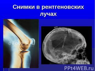 Снимки в рентгеновских лучах