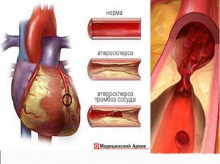 У курящих с содержанием в крови карбоксигемоглобина, равным 5%, частота развития