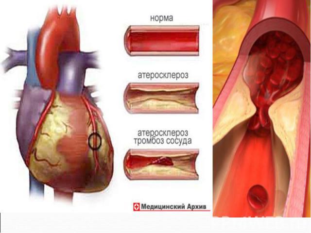 У курящих с содержанием в крови карбоксигемоглобина, равным 5%, частота развития атеросклероза (СО усиливает отложения холестерина в стенках кровеносных сосудов) возрастала в 21 раз по сравнению с курящими с содержанием карбоксигемоглобина в крови, …