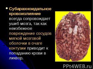 Субарахноидальное кровоизлияние всегда сопровождает ушиб мозга, так как неизбежн