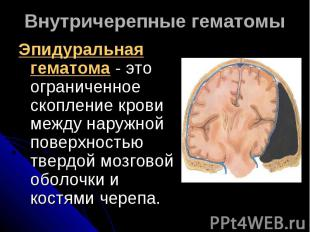 Внутричерепные гематомыЭпидуральная гематома - это ограниченное скопление крови