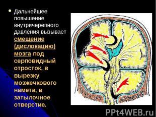 Дальнейшее повышение внутричерепного давления вызывает смещение (дислокацию) моз
