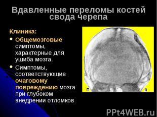 Вдавленные переломы костей свода черепаКлиника:Общемозговые симптомы, характерны
