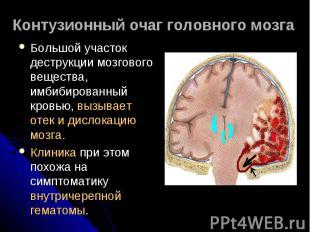 Контузионный очаг головного мозга Большой участок деструкции мозгового вещества,