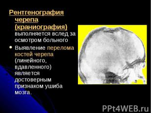 Рентгенография черепа (краниография) выполняется вслед за осмотром больногоРентг
