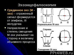 ЭхоэнцефалоскопияСрединное эхо (М - эхо) – отраженный сигнал формируется от эпиф