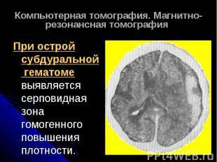 Компьютерная томография. Магнитно-резонансная томография При острой субдуральной