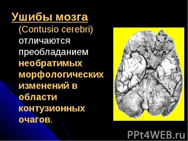 Ушибы мозга (Contusio cerebri) отличаются преобладанием необратимых морфологических изменений в области контузионных очагов. Ушибы мозга (Contusio cerebri) отличаются преобладанием необратимых морфологических изменений в области контузионных очагов.