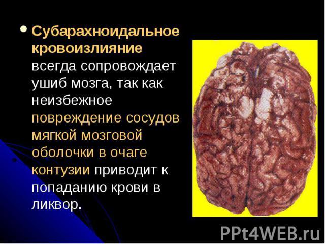 Субарахноидальное кровоизлияние всегда сопровождает ушиб мозга, так как неизбежное повреждение сосудов мягкой мозговой оболочки в очаге контузии приводит к попаданию крови в ликвор. Субарахноидальное кровоизлияние всегда сопровождает ушиб мозга, так…