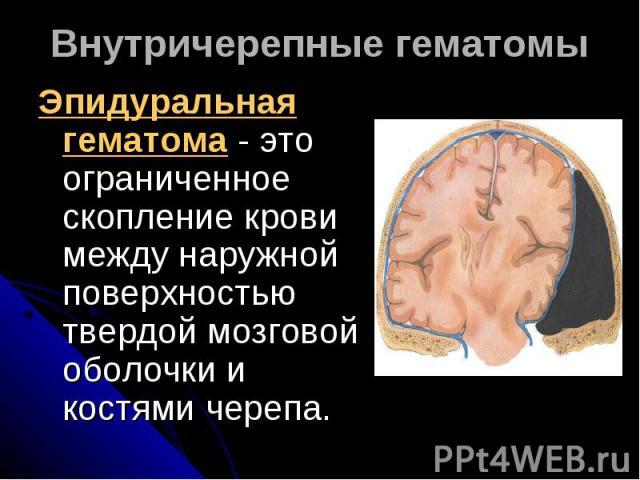 Внутричерепные гематомыЭпидуральная гематома - это ограниченное скопление крови между наружной поверхностью твердой мозговой оболочки и костями черепа.