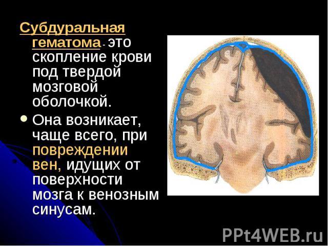 Субдуральная гематома - это скопление крови под твердой мозговой оболочкой. Субдуральная гематома - это скопление крови под твердой мозговой оболочкой. Она возникает, чаще всего, при повреждении вен, идущих от поверхности мозга к венозным синусам.