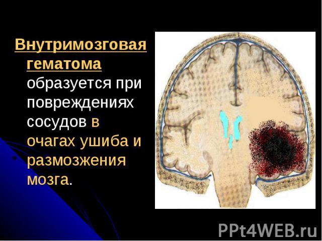 Внутримозговая гематома образуется при повреждениях сосудов в очагах ушиба и размозжения мозга. Внутримозговая гематома образуется при повреждениях сосудов в очагах ушиба и размозжения мозга.