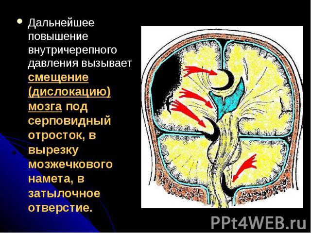 Дальнейшее повышение внутричерепного давления вызывает смещение (дислокацию) мозга под серповидный отросток, в вырезку мозжечкового намета, в затылочное отверстие.Дальнейшее повышение внутричерепного давления вызывает смещение (дислокацию) мозга под…