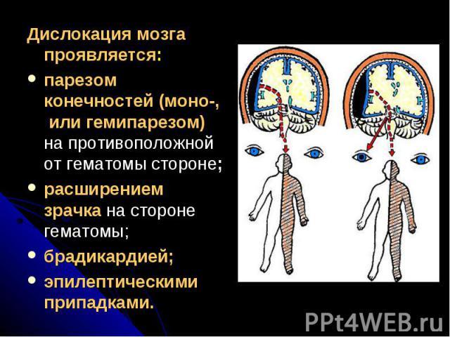 Дислокация мозга проявляется:Дислокация мозга проявляется:парезом конечностей (моно-, или гемипарезом) на противоположной от гематомы стороне; расширением зрачка на стороне гематомы;брадикардией;эпилептическими припадками.