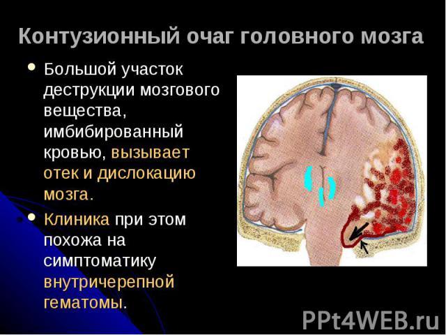 Контузионный очаг головного мозга Большой участок деструкции мозгового вещества, имбибированный кровью, вызывает отек и дислокацию мозга.Клиника при этом похожа на симптоматику внутричерепной гематомы.