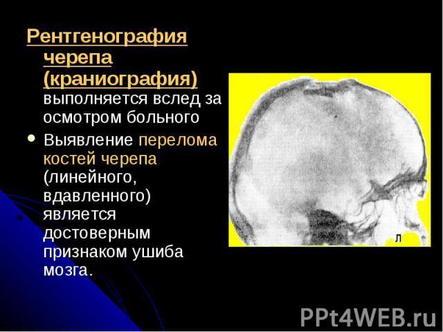 Рентгенография черепа (краниография) выполняется вслед за осмотром больногоРентгенография черепа (краниография) выполняется вслед за осмотром больногоВыявление перелома костей черепа (линейного, вдавленного) является достоверным признаком ушиба мозга.