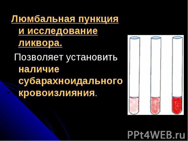 Люмбальная пункция и исследование ликвора.Люмбальная пункция и исследование ликвора. Позволяет установить наличие субарахноидального кровоизлияния.