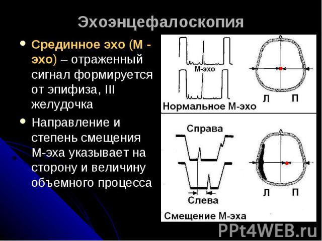 ЭхоэнцефалоскопияСрединное эхо (М - эхо) – отраженный сигнал формируется от эпифиза, III желудочкаНаправление и степень смещения М-эха указывает на сторону и величину объемного процесса