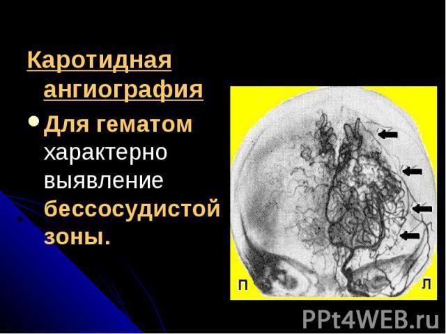 Каротидная ангиографияКаротидная ангиографияДля гематом характерно выявление бессосудистой зоны.